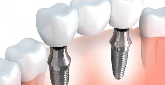 Save Money on Your Dental Implants